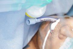 有气管内管的严重患者 库存照片