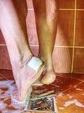 有水泡关闭致命弱点的赤裸腿 图库摄影