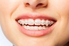 有清楚的托架的健康微笑妇女 免版税库存照片