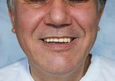 有牙齿桥梁的人 免版税库存照片