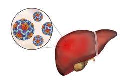 有甲型肝炎传染和特写镜头观点的肝脏的甲型肝炎病毒 免版税图库摄影