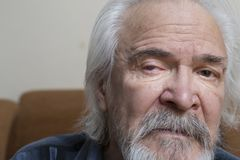 有疼痛眼睛的孤独的老人 库存照片