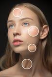 有皮肤的各种各样的类型的美丽的女孩 库存图片