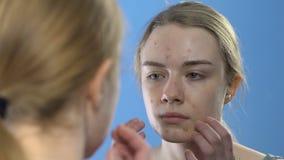有看在镜子,在年轻的皮肤学问题的粉刺面孔的青少年的女孩 影视素材