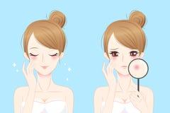 有粉刺的动画片妇女 库存图片