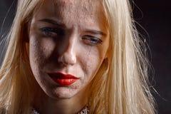 有粉刺皮肤的女孩 免版税库存图片