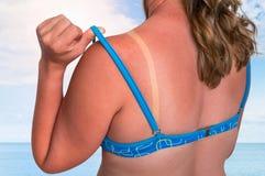 有红色的妇女晒伤了肩膀-晒斑概念 免版税图库摄影
