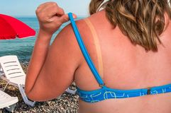有红色的妇女晒伤了肩膀-晒斑概念 免版税库存图片