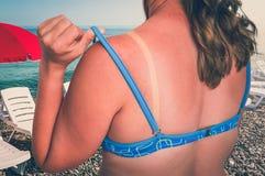 有红色的妇女晒伤了肩膀-晒斑概念 库存图片