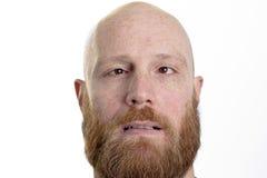有红色胡子和内斜视的傻的秃头人 免版税库存照片