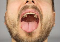 有胡子的人张了他的牙齿检查的嘴 库存图片