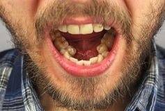 有胡子的人张了他的lowe的牙齿检查的嘴 库存图片