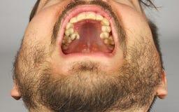 有胡子的人张了他的uppe的牙齿检查的嘴 图库摄影