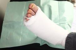 有脚传染的糖尿病人 库存照片