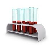 有血样的医疗测试管 库存图片
