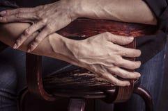 有血液静脉的妇女手 情感姿态 库存图片