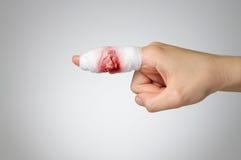 有血淋淋的绷带的受伤的手指 免版税库存照片