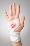 有血淋淋的绷带的手 免版税库存图片
