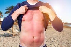 有被晒伤的皮肤的人从在海滩的太阳 免版税库存图片