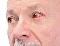 有被激怒的红色眼充血的老人 免版税库存照片