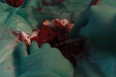 有解剖刀的外科医生手 库存照片