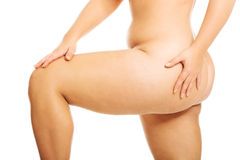 有超重的妇女腿 免版税库存图片