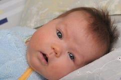 有过敏的新出生的婴孩 免版税库存图片
