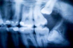 有问题的智齿X-射线  免版税库存图片