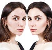 有问题皮肤的妇女在她的面孔 库存图片