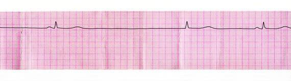 有静脉窦结和替换复合体中止的ECG磁带从房室的连接点 库存照片