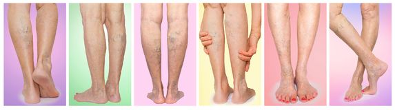 有静脉静脉肿蜘蛛的女性腿 拼贴画 库存照片