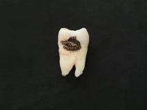有龋大孔的特写镜头唯一坏牙在黑背景 不健康的牙 免版税库存照片