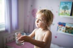 有水痘的小女孩,防腐奶油适用于疹 库存照片