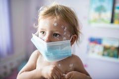 有水痘的小女孩,防腐奶油适用于ras 库存图片