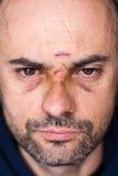有黑眼睛的受伤的人 库存照片