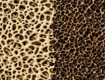 有Osteoperosis的骨头 库存照片