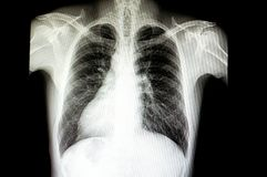 有situs inversus的一名患者 库存照片