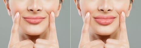 机体女性嘴唇爱零件 在嘴唇补白射入前后的妇女嘴唇 免版税库存照片