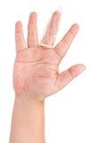 查出的避孕套手指 图库摄影