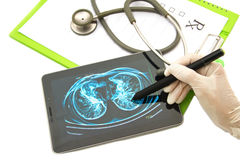 查找在片剂的医生胸部X光图象 免版税库存照片