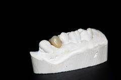树脂牙 免版税库存照片