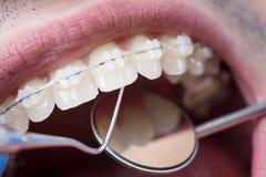 检查牙的牙医与陶瓷托架使用牙齿工具-探针和镜子 图库摄影