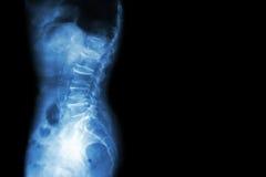 椎关节强硬,脊椎前移(影片X-射线lumbo -荐骨的脊椎展示脊椎崩溃,在磁盘空间,骨多的踢马刺格式的减退 免版税库存照片