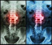 椎关节强硬(影片X-射线lumbo -荐骨的脊椎:显示椎关节强硬在L2-3) 库存图片