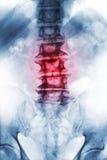 椎关节强硬 骨赘老年迈的耐心的展示影片X-射线腰骶的脊椎,从衰退过程的崩溃脊椎 前面 库存图片