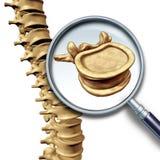 椎骨脊柱 库存照片