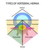 椎间的疝气的地点的类型 在被隔绝的背景的传染媒介例证 图库摄影
