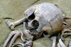概念考古学和死亡和发掘的科学研究 一个人、一块被毁坏的头骨和骨头的遗骸的特写镜头 免版税库存图片