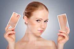 概念skincare。 秀丽少妇皮肤有粉刺的 免版税图库摄影