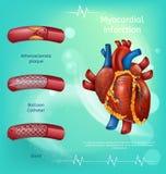 横幅图象现实血管人的心脏 向量例证